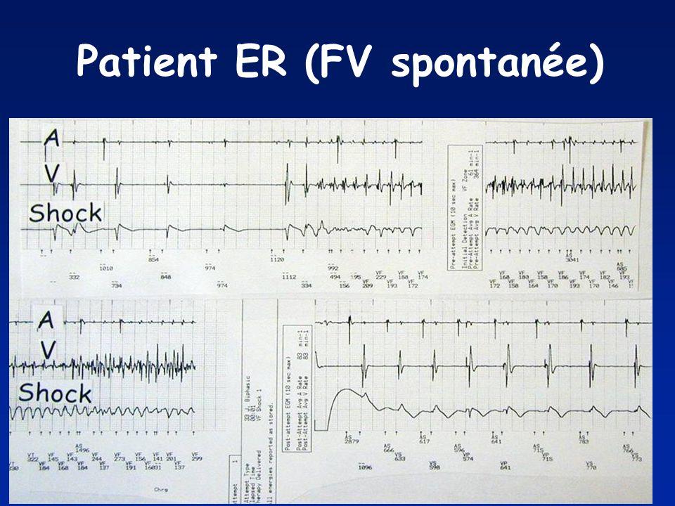 Patient ER (FV spontanée)