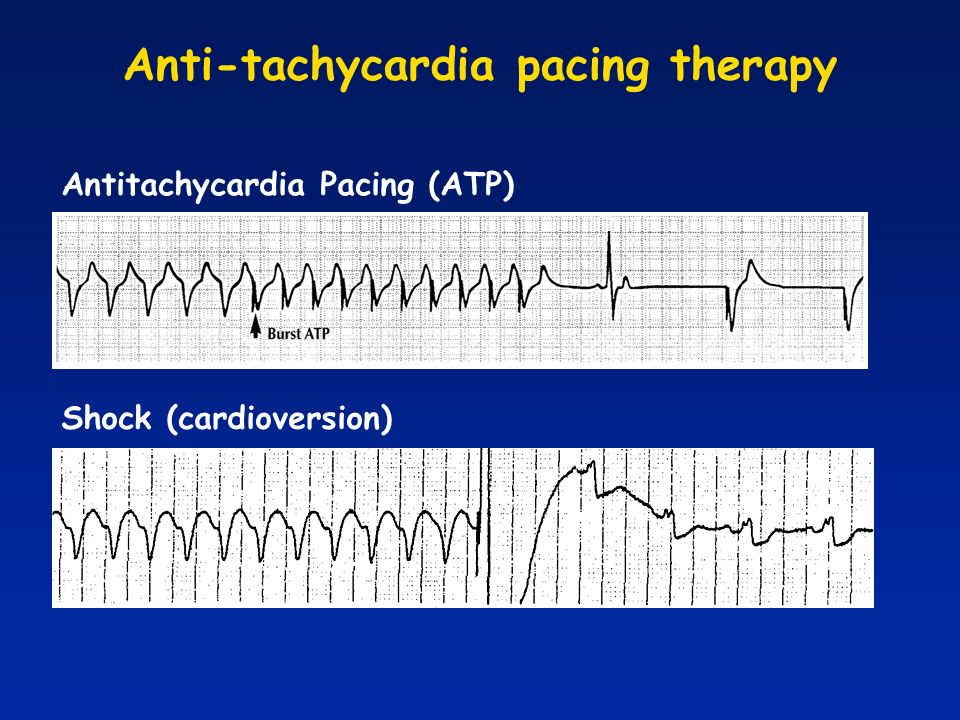 Anti-tachycardia pacing therapy
