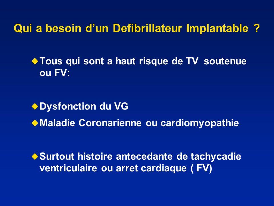 Qui a besoin d'un Defibrillateur Implantable
