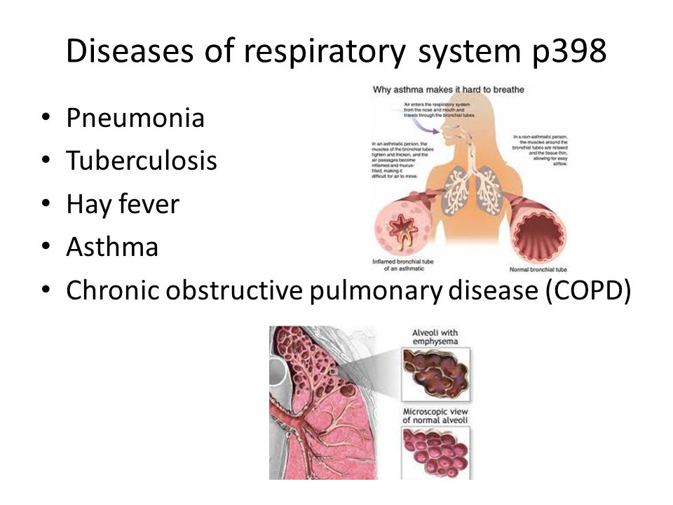 diseases of the respiratory system essay Respiratory system essay submitted by: open document below is an essay on respiratory system from anti essays diseases of the respiratory system.