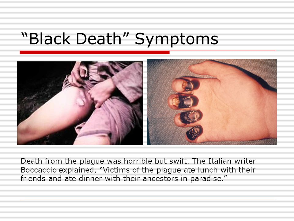 signs and symptoms of the bubonic plague Plague (bubonic / pneumonic) what is it bubonic plague -- an infection of the lymph nodes what are the symptoms the signs and symptoms of plague vary depending on which form of plague occurs.