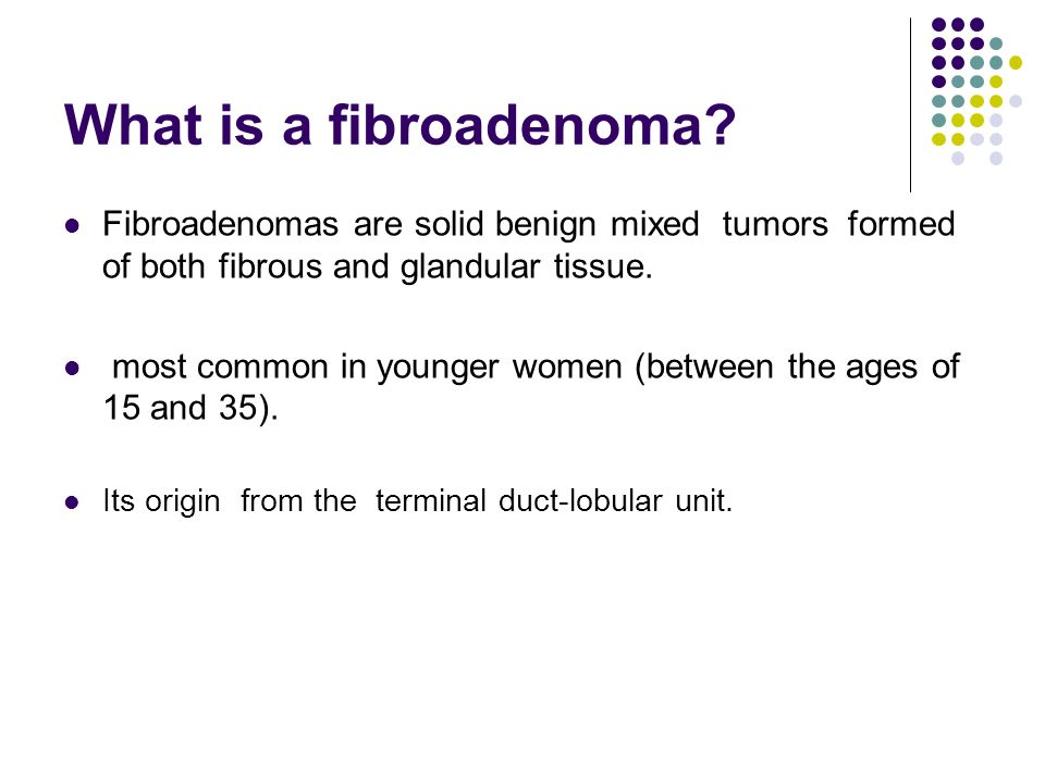 What is Fibroadenoma