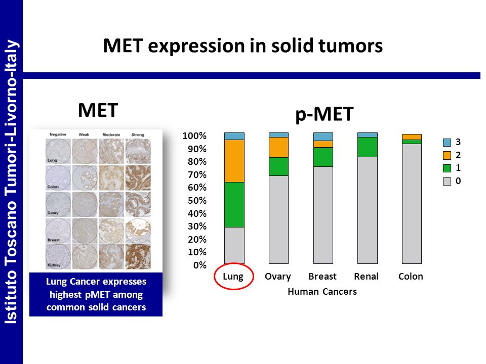 MET expression in solid tumors