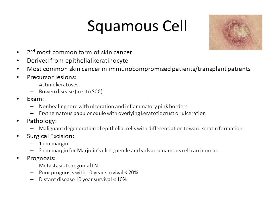 Chapter 111: Cutaneous Neoplasms - ppt video online download | 960 x 720 jpeg 77kB