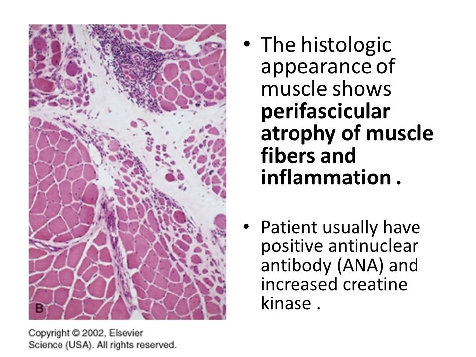 Musculoskeletal Block Pathology Practical Ppt Video
