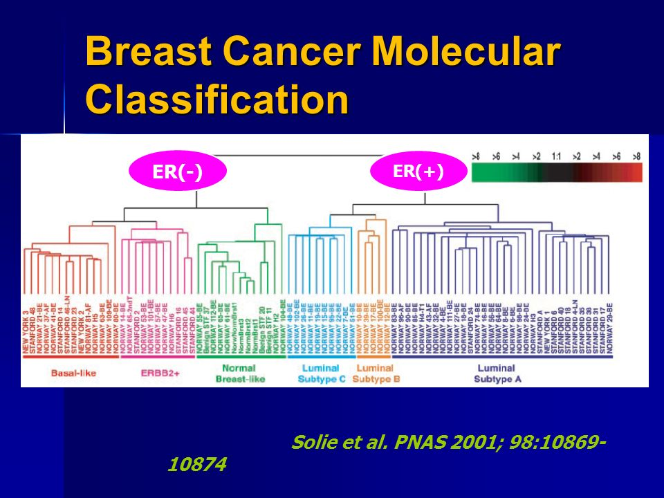 Breast Cancer Tumor Board Ppt Video Online Download