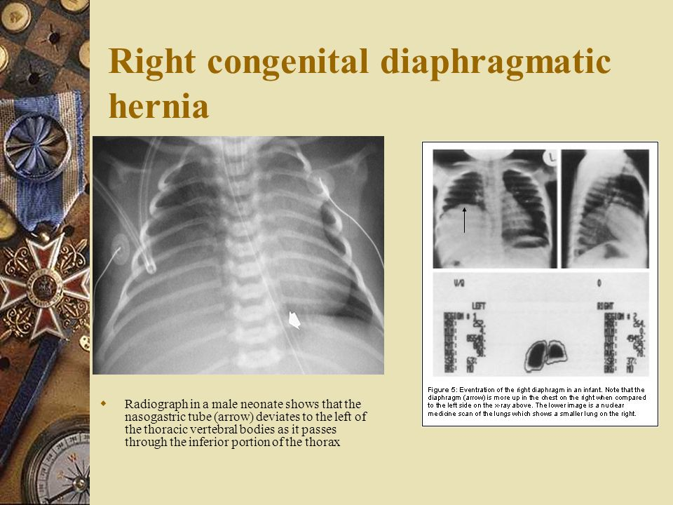diaphragm and hiatus hernia ppt video online download