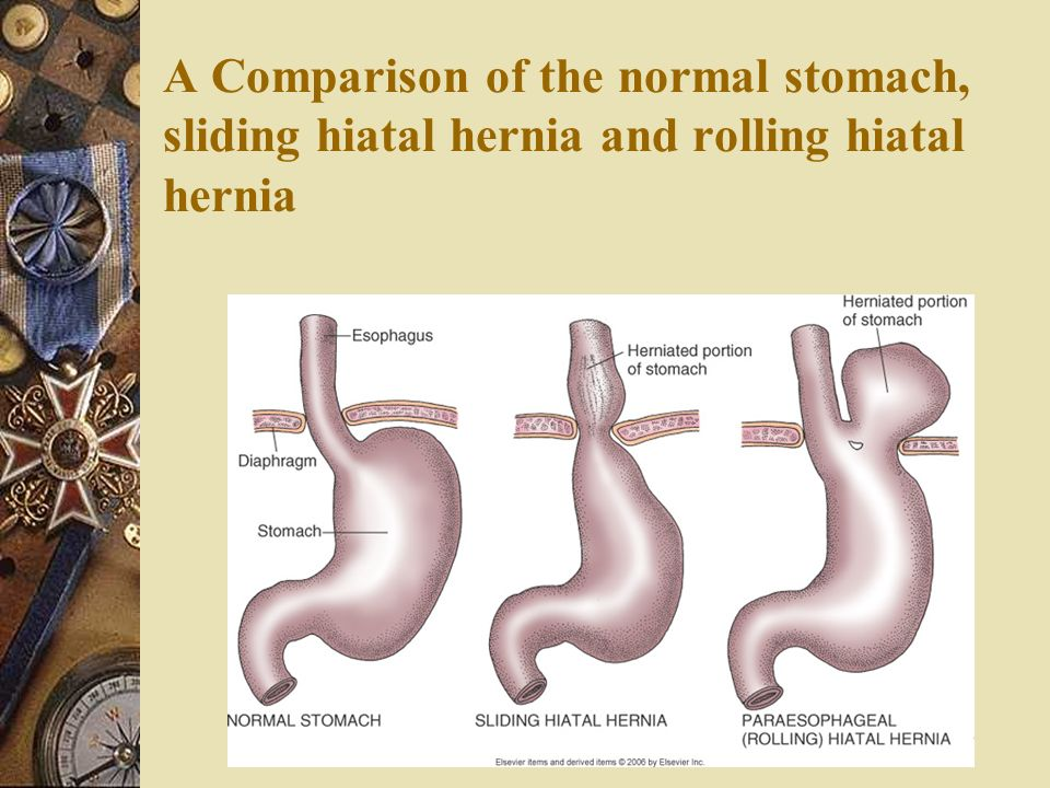 how to live with a hiatal hernia