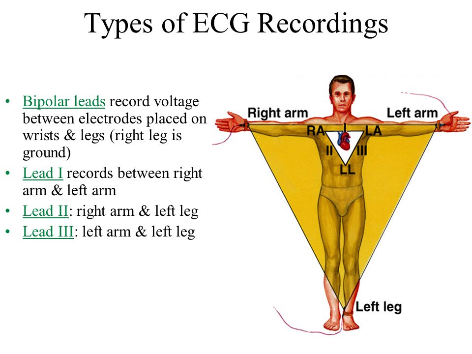 Electrocardiogram (ECG/EKG) - ppt download