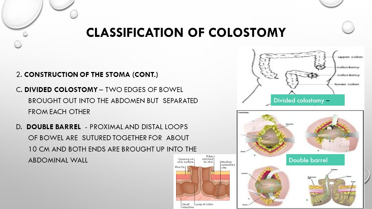 Outline Endoscopy Indications Contraindications