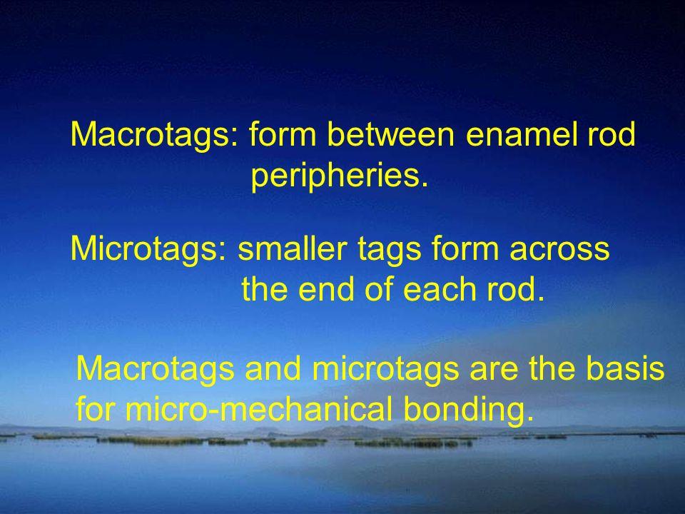 Macrotags: form between enamel rod