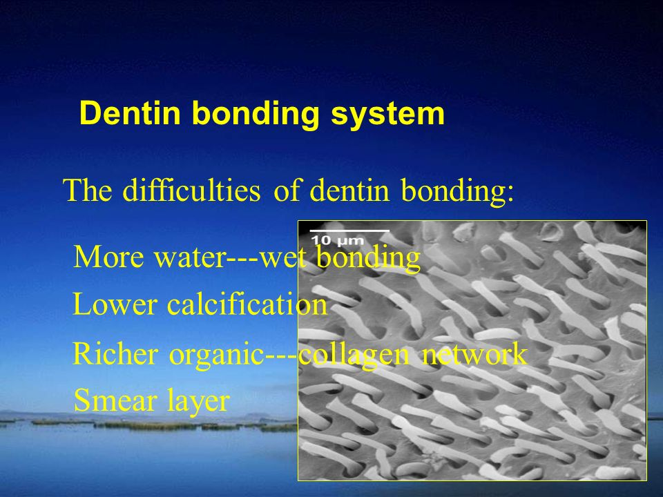 Dentin bonding system The difficulties of dentin bonding: More water---wet bonding. Lower calcification.