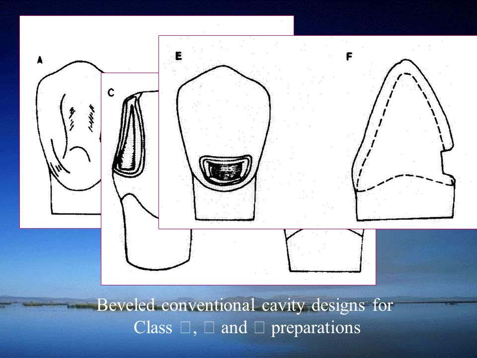Beveled conventional cavity designs for Class Ⅲ, Ⅳ and Ⅴ preparations