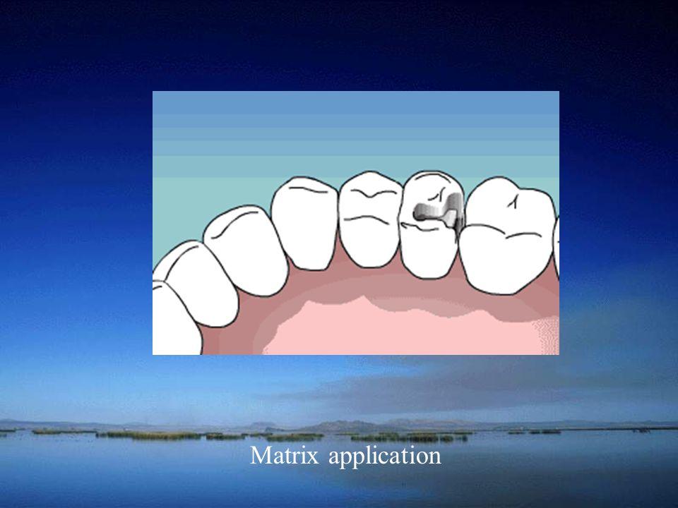 Matrix application