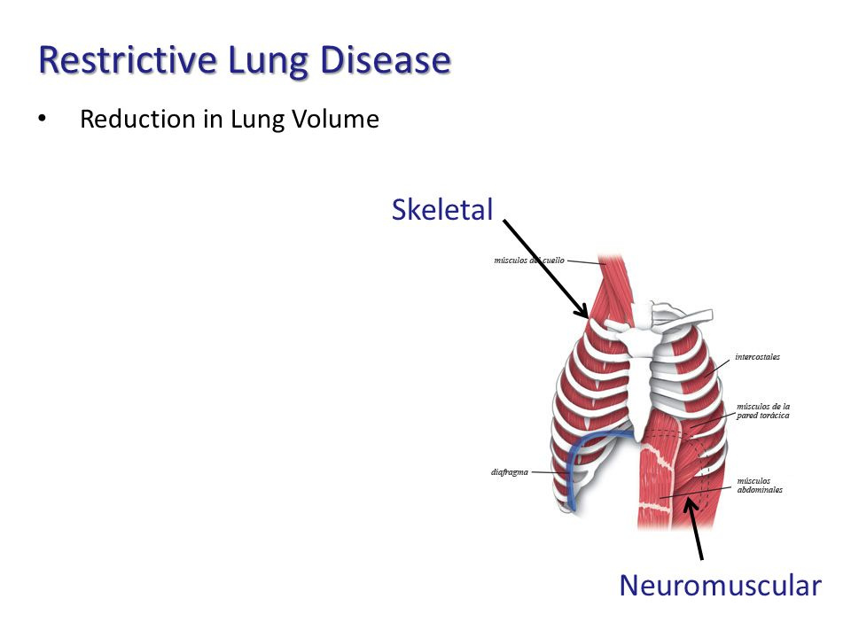 pulmonary hypertension syndrome in fast growing broilers Understanding and controlling ascites increases in fast growing broilers, pulmonary hypertension must occur since resistance in the lungs (pulmonary vascular resistance) (understanding pulmonary hypertension syndrome (ascites).