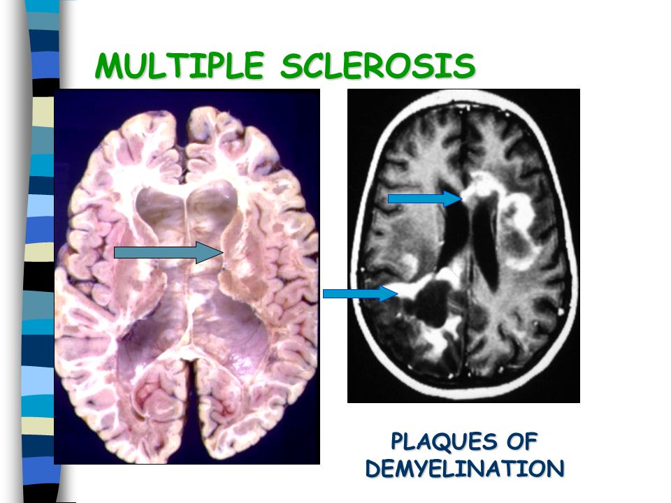 a research on the disease multiple sclerosis Home / for patients and families / rare disease information / multiple sclerosis 0-9 of the european committee for the treatment and research in multiple.