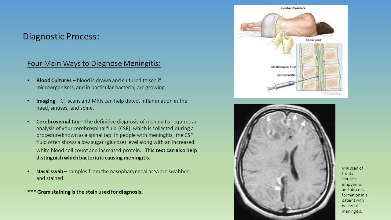 bacterial meningitis essay example Bacterial meningitis information this disease is notifiable in the uk, see noids article for more detail meningitis is an inflammation of the leptomeninges and.