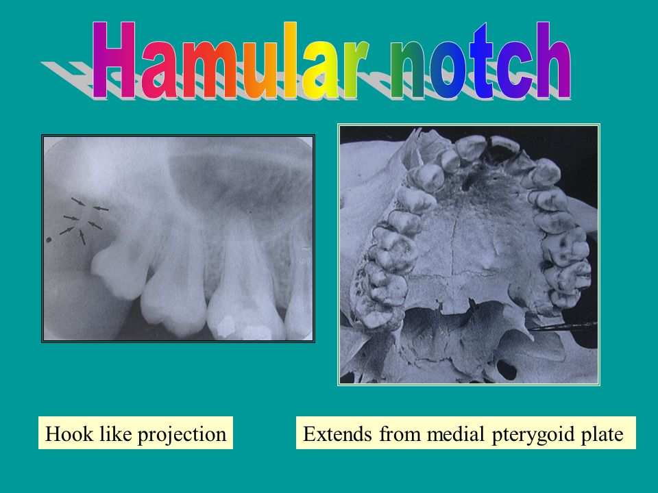 NORMAL ANATOMICAL RADIOGRAPHIC LANDMARKS - ppt video ...