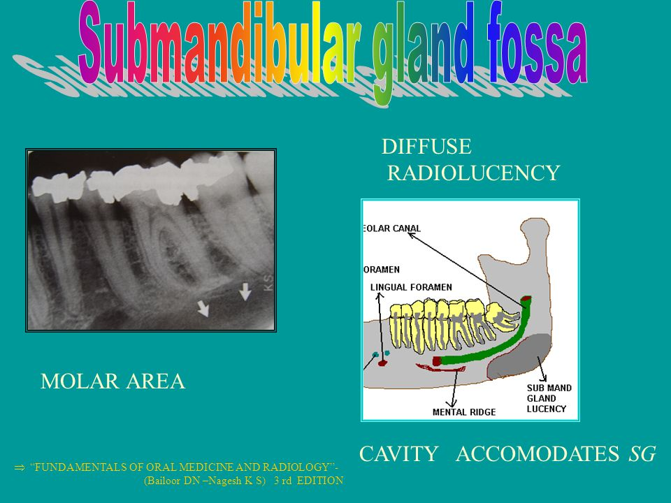 normal anatomical radiographic landmarks ppt video