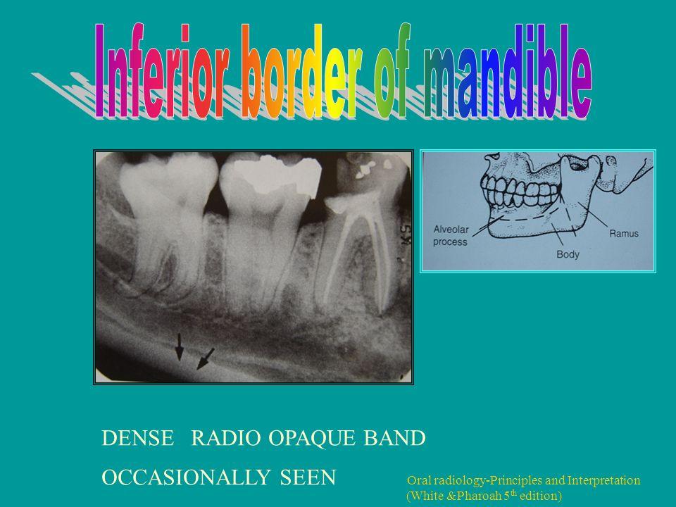 normal anatomical radiographic landmarks