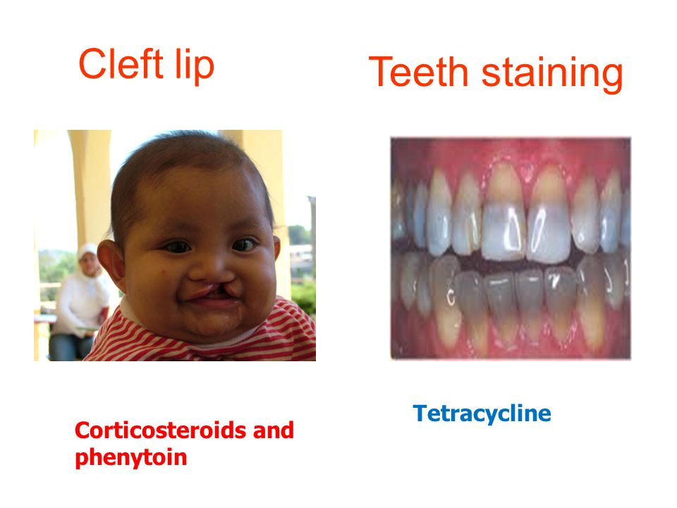 Cleft lip Teeth staining Tetracycline Corticosteroids and phenytoin