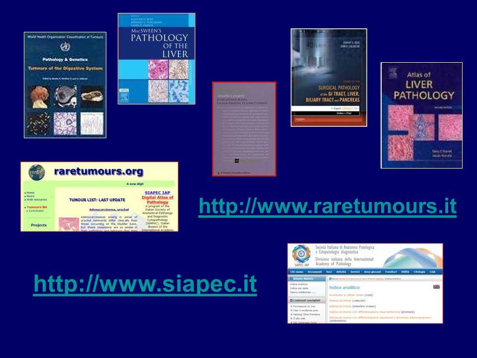 http://www.raretumours.it http://www.siapec.it