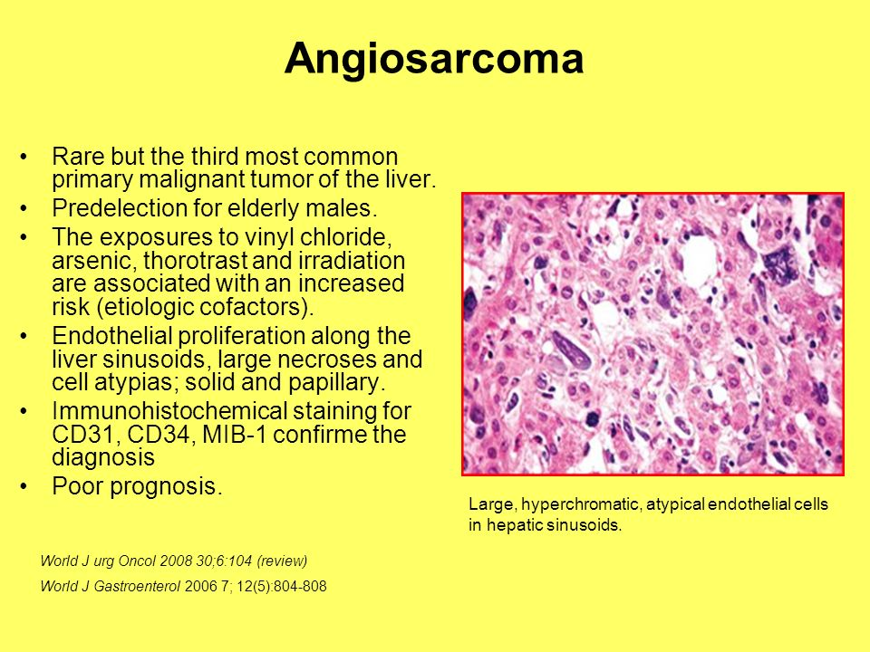 Angiosarcoma Rare but the third most common primary malignant tumor of the liver. Predelection for elderly males.
