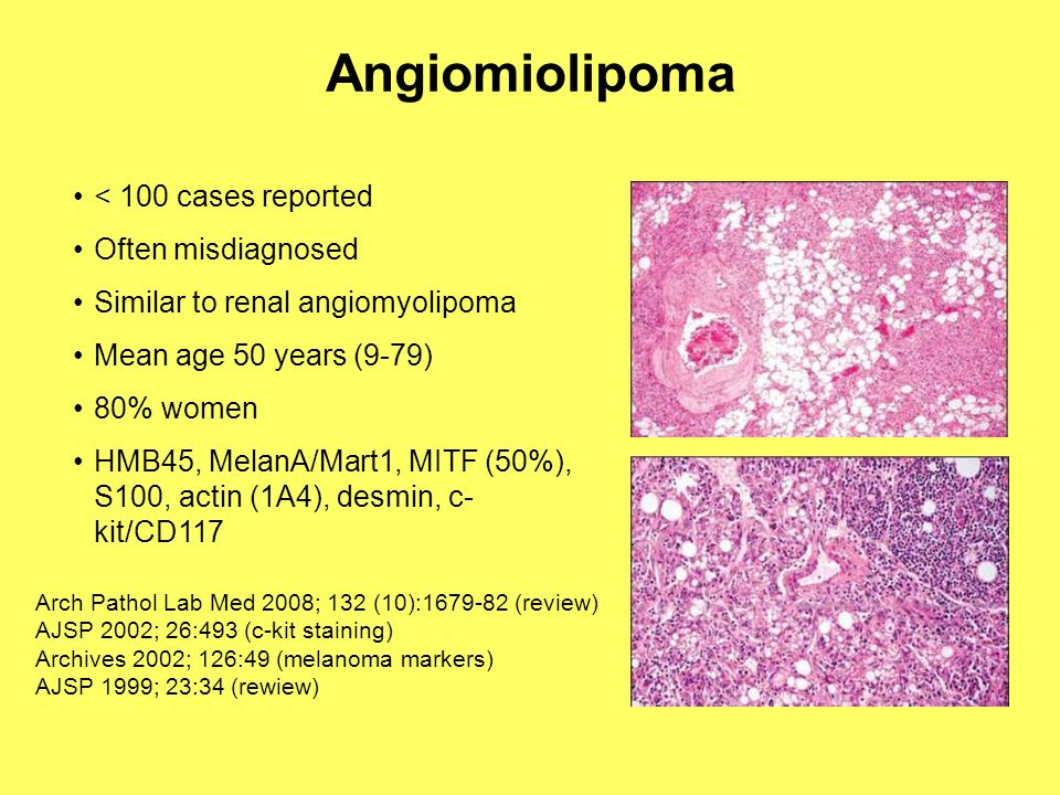 Angiomiolipoma < 100 cases reported Often misdiagnosed