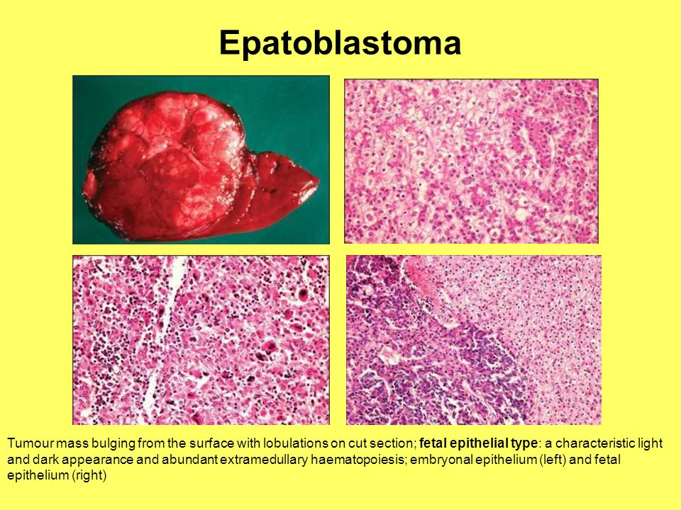 Epatoblastoma 1. Hepatoblastoma. A lobectomy specimen, showing a tumour mass bulging from the surface with lobulations on cut section.