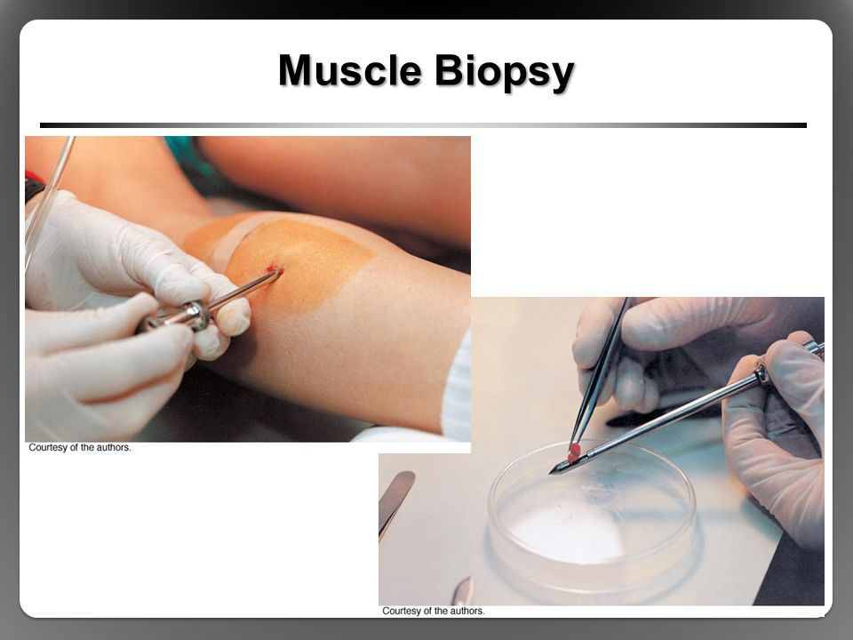 structure and function of exercising muscle - ppt download, Muscles