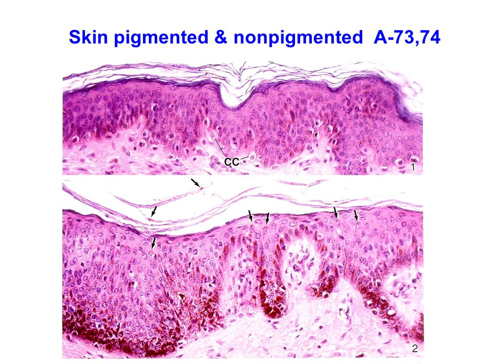 Integumentary System C 57 To C 62 D 56 To D Ppt Video