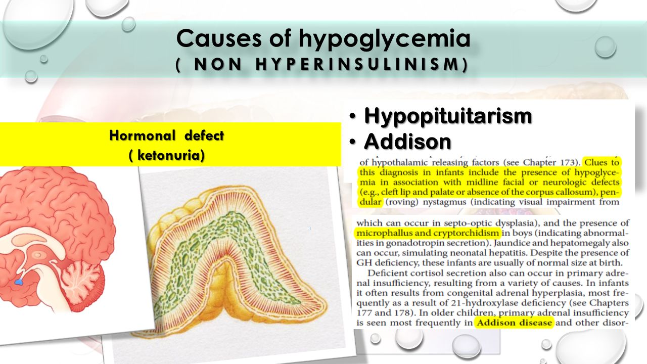Ketotic Hypoglycemia Causes | KetogenicDietPDF.Com