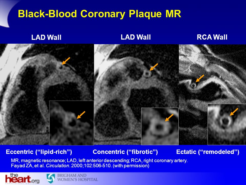 Black-Blood Coronary Plaque MR