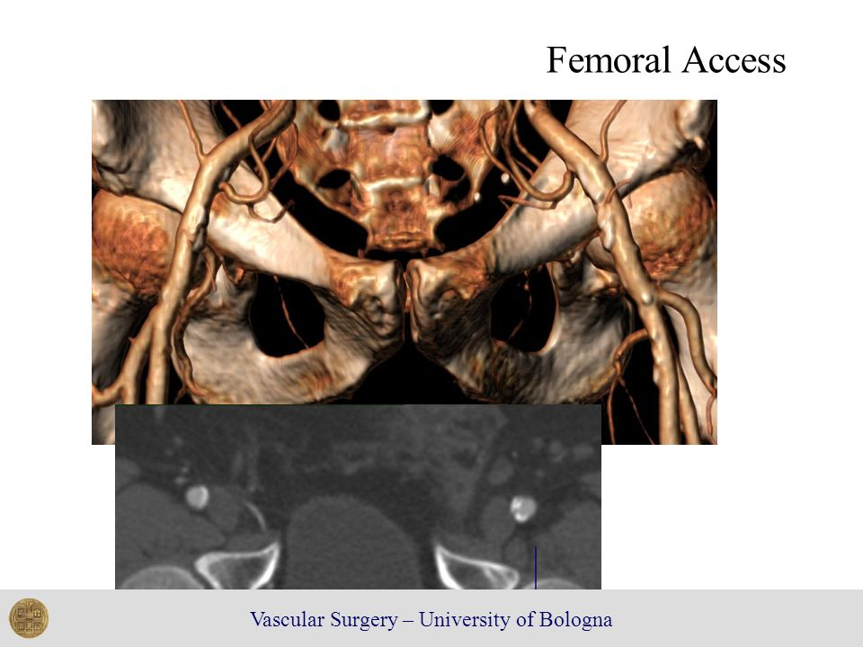 Vascular Surgery – University of Bologna