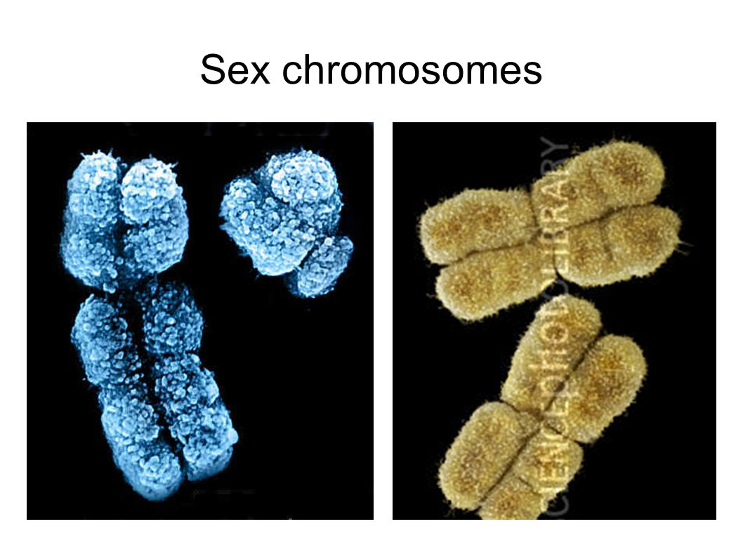 Sex chromosones