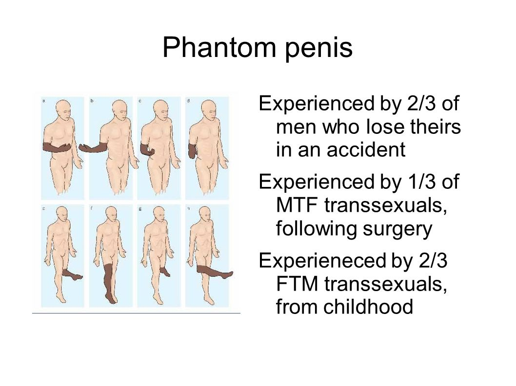 Phantom penis Experienced by 2/3 of men who lose theirs in an accident