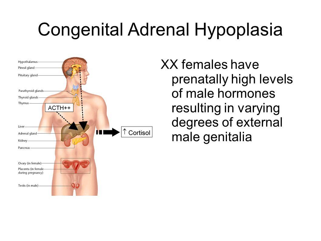 Congenital Adrenal Hypoplasia