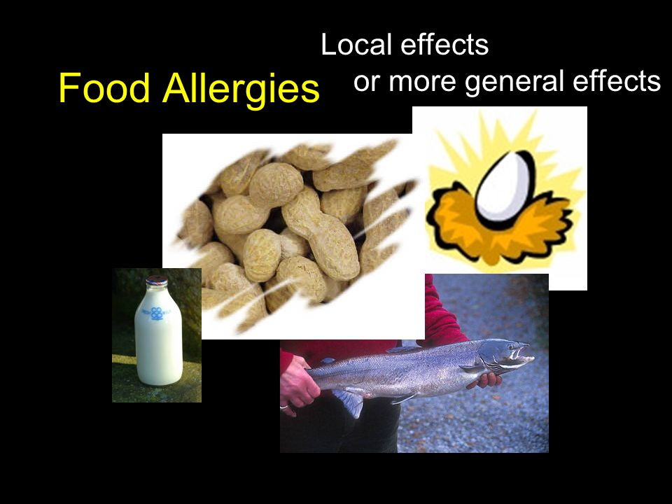 Local effects or more general effects Food Allergies