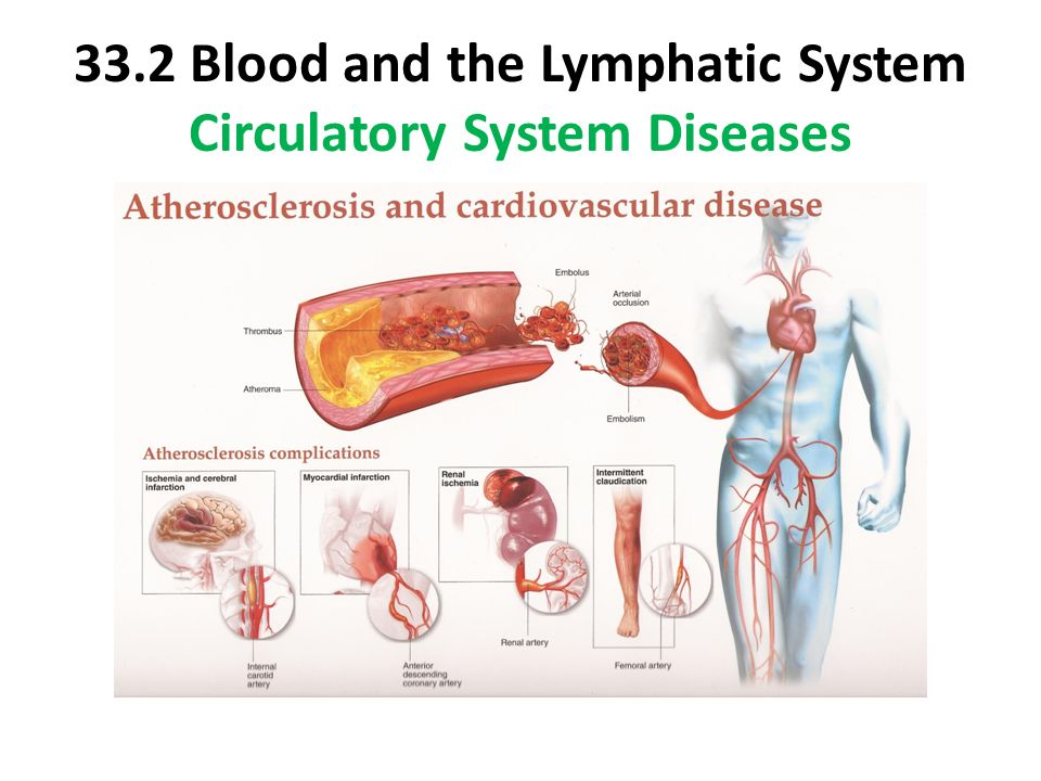 Quick & Easy Weight Loss Tips Lymphatic system diseases