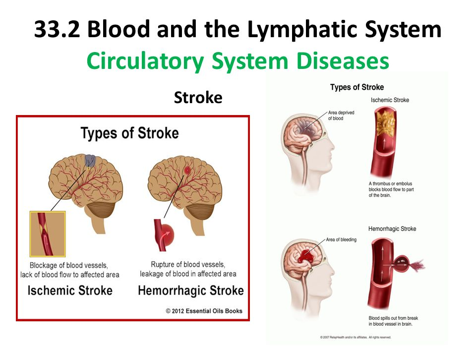 Lymphatic disorders