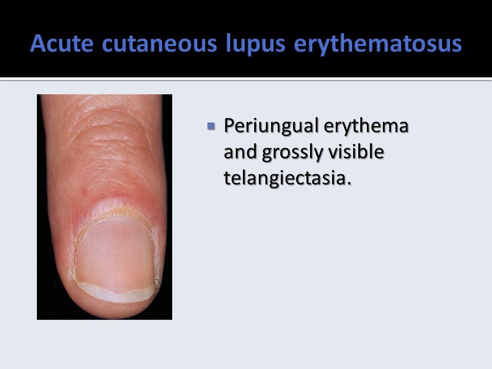 Cutaneous lupus erythematosus ppt download acute cutaneous lupus erythematosus sciox Image collections