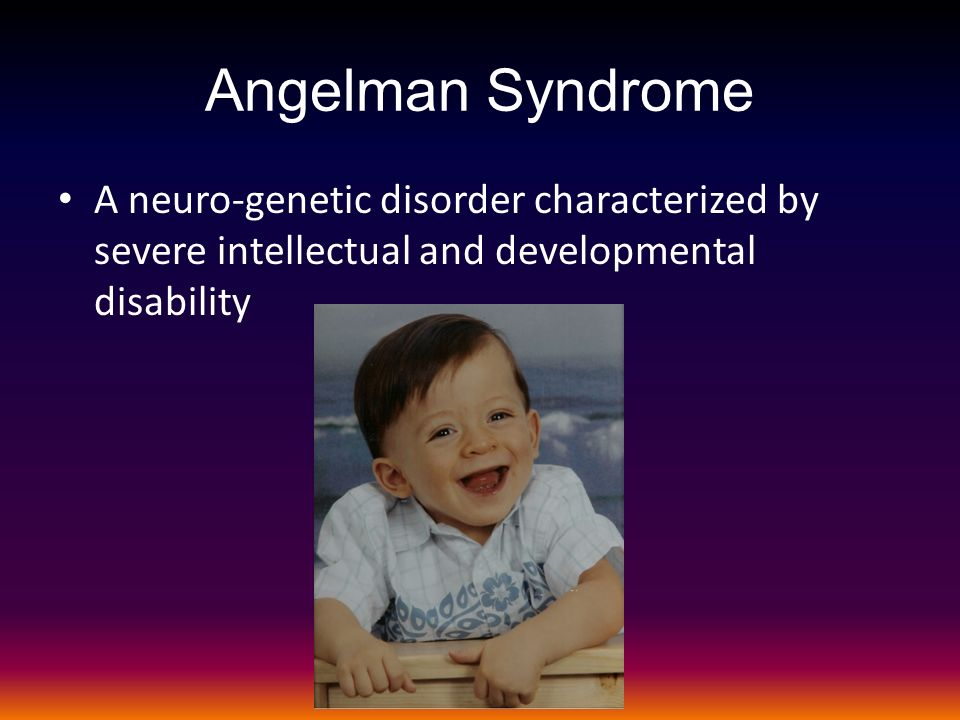 angelman syndrome summary 11 clayton-smith j clinical research on angelman syndrome in the united kingdom: observations on 82 affected individuals am j med genet 46: 12-15, 1993 12 clayton-smith j, and laan l angelman syndrome: a review of the clinical and genetic aspects j med genet 40: 87-95, 2003 13 clayton-smith j, and pembrey me angelman.
