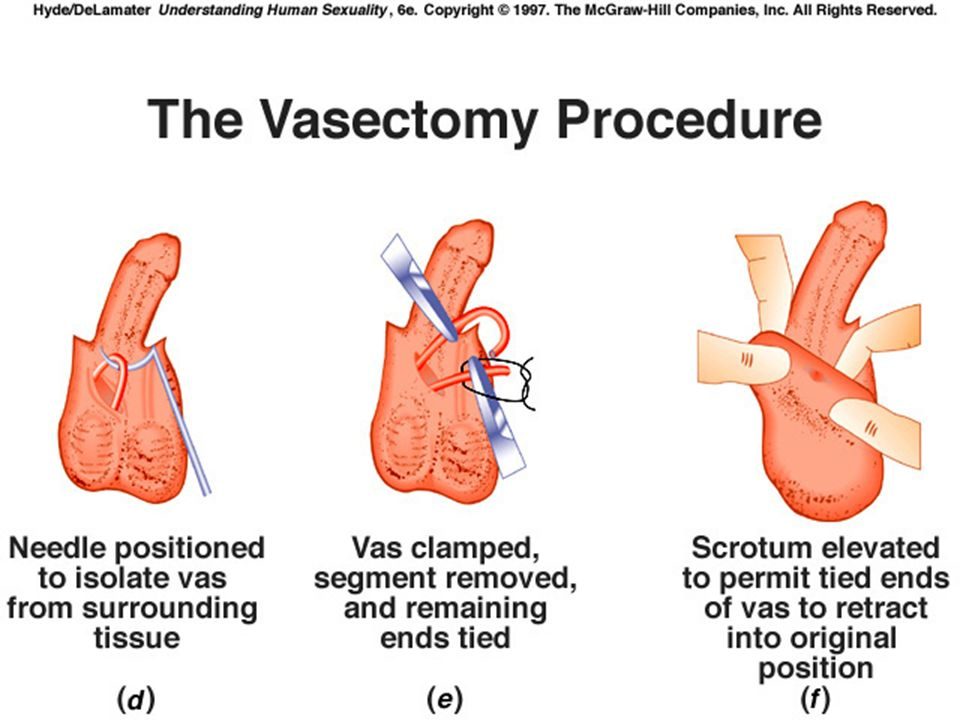 How long after a vasectomy can i have sex images 90
