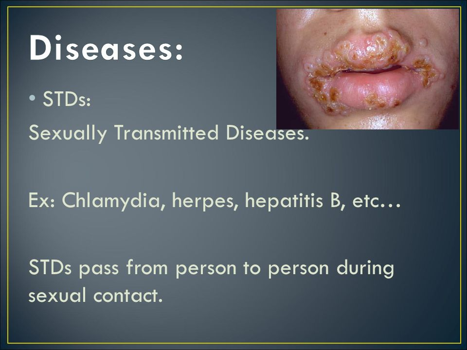 Diseases: STDs: Sexually Transmitted Diseases.