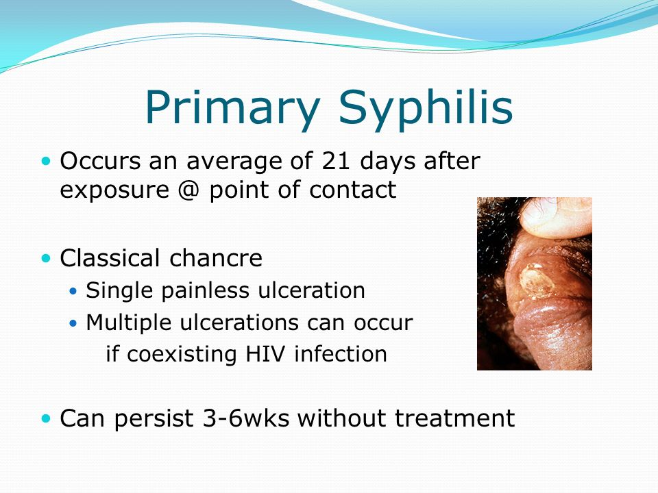Primary Syphilis Occurs an average of 21 days after point of contact. Classical chancre.