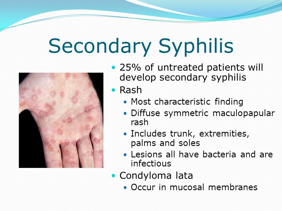 Secondary Syphilis 25% of untreated patients will develop secondary syphilis. Rash. Most characteristic finding.