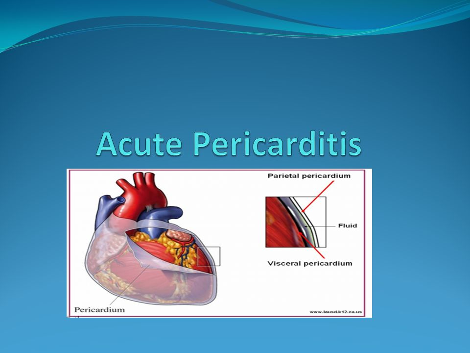 pericarditis inflammation and heart This is acute inflammation of the pericardium, the membranous sac which surrounds the heart the pericardium is composed of an outer fibrous layer (parietal.