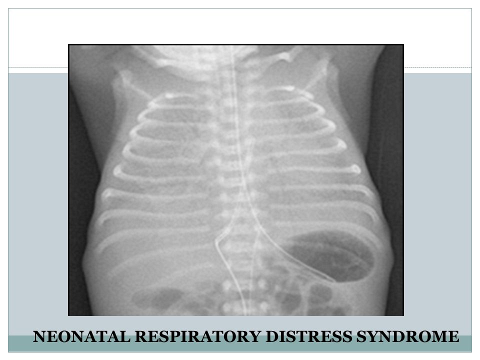 neonatal respiratory distress syndrome Neonatal respiratory distress syndrome definition neonatal respiratory distress syndrome (rds) is a problem often seen in premature babies.