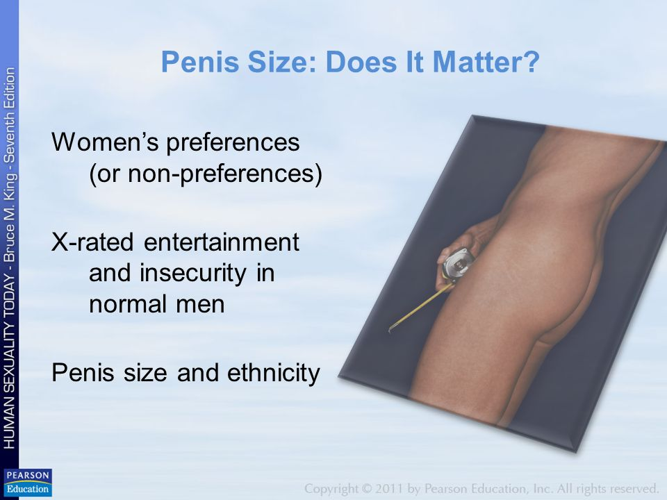 Does penis size matter to women