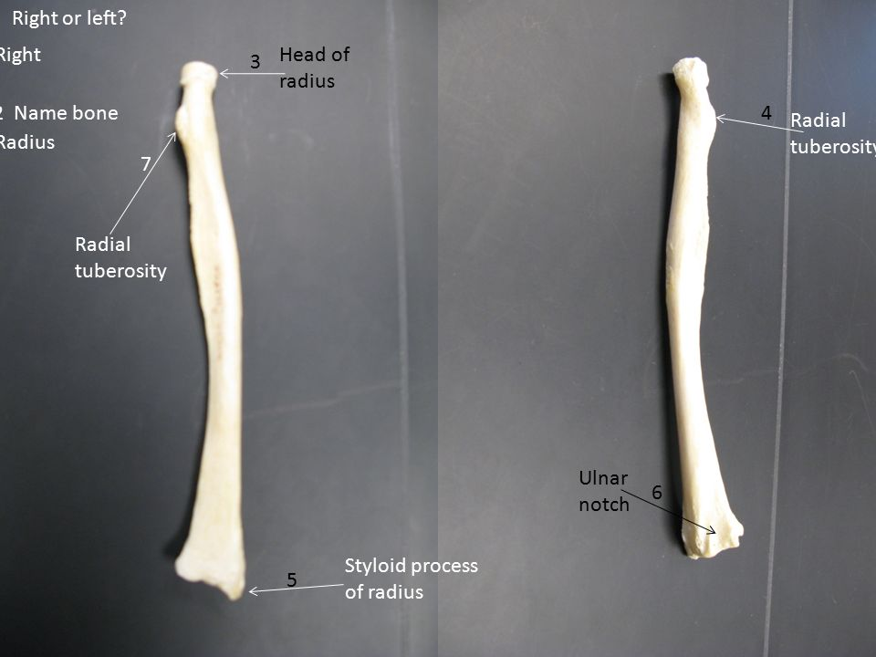 11 Anatomical Neck Head 1 Lesser Tubercle 6 7 Greater ...